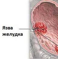 Язвочки в желудке лечение