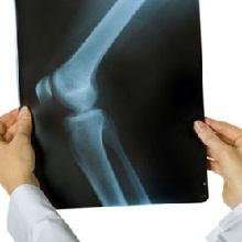 Артроз коленного сустава причины возникновения