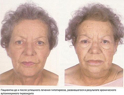 Хроническое воспаление щитовидной железы