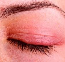 Блефарит глаз лечение у взрослых