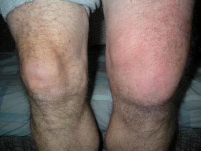 Бурсит колена симптомы и лечение