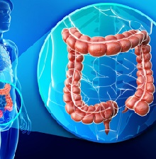 Лечение эрозивного колита кишечника
