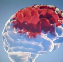 Восстановление после кровоизлияния в мозг
