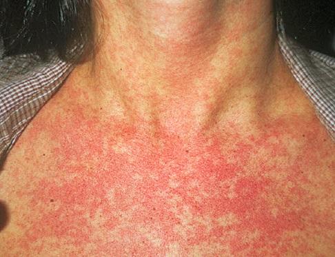 Заболевание краснуха симптомы