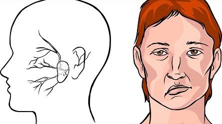Микро инсульт - какие симптомы у женщин?