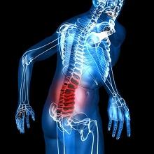 Как вылечить остеохондроз поясничного отдела позвоночника