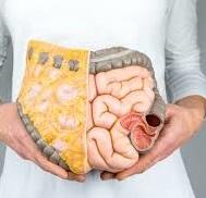 Рак кишечника – признаки и симптомы рака кишечника, стадии и лечение колоректального рака