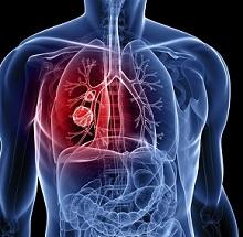 Признаки рака легких на ранней стадии