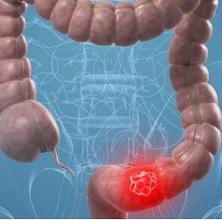 Онкология прямой кишки симптомы и признаки болезни