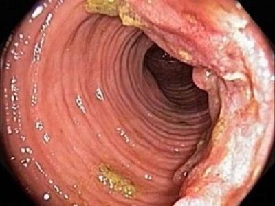 Первые признаки и симптомы рака прямой кишки у женщин (фото)