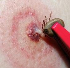 Клещевой боррелиоз (болезнь Лайма) - симптомы, лечение и последствия боррелиоза