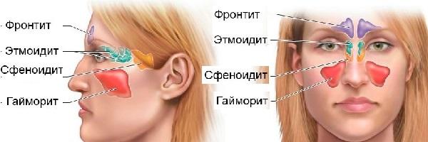 Гайморит симптоми і лікування народними методами