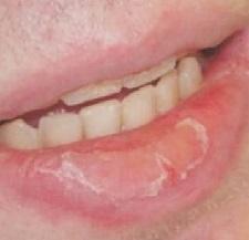 Заживляющая мазь для губ: названия, состав, показания и противопоказания