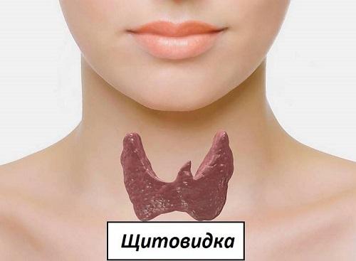 Операция по удалению кисты щитовидной железы