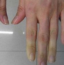 Болезнь Рейно: причины, признаки, симптомы и лечение