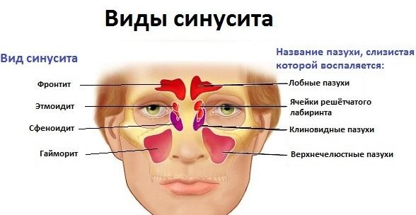 Синусит - что это? Симптомы, лечение у взрослых в домашних условиях | Синусит: симптомы и лечение, что это такое, признаки у взрослых | Синусит симптомы и лечение у взрослых (Что такое острый синусит и чем его лечить)