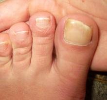 Ногти на ногах толстые и твердые: как размягчить ногти на ногах маслом, уксусом, кремом и в ванночке? Чем размягчить ногти на ногах при грибке, как смягчить ногти на ногах у пожилых людей?