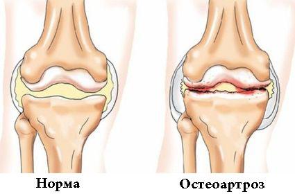 Остеоартроз коленного сустава симптомы фото thumbnail
