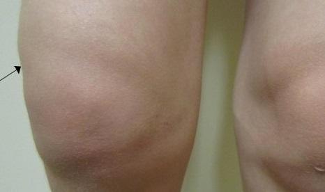 Остеоартроз коленного сустава симптомы фото