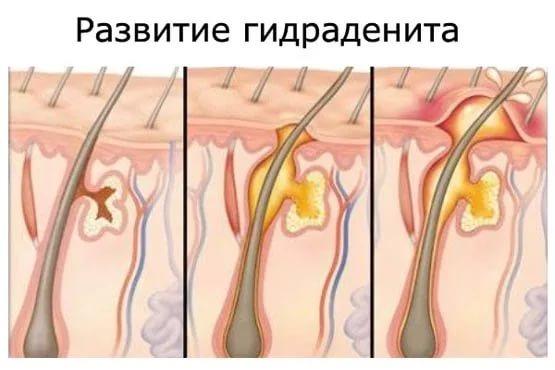 Воспаление потовых желез под мышкой