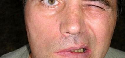 Неврит лицевого нерва лечение в домашних условиях при беременности