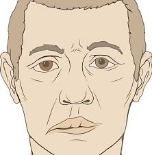 Неврит лицевого нерва через сколько проходит