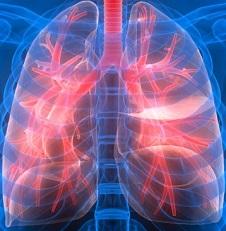 Саркоидоз легких, что это? Прогноз для жизни, симптомы и лечение саркоидоза