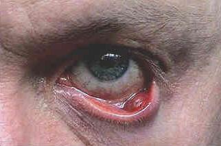 Сильный отек глаза при халязионе