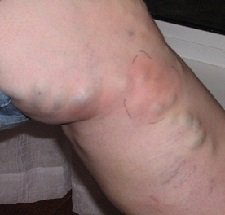 Тромбоз глубоких вен симптомы фото и лечение