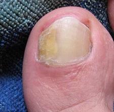 Грибок ногтей ног: чем лечить в домашних условиях у взрослого