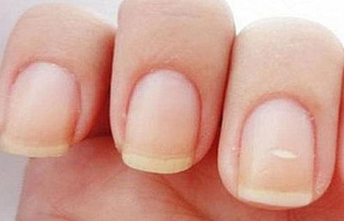Грибок ногтя акрил
