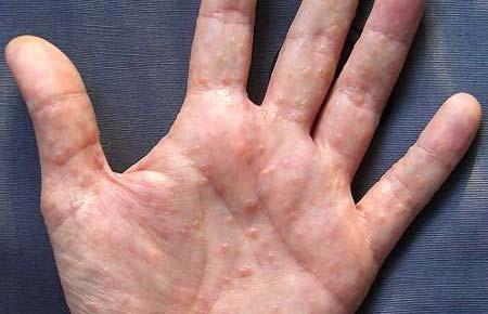 Мелкая красная сыпь на руках чешется фото