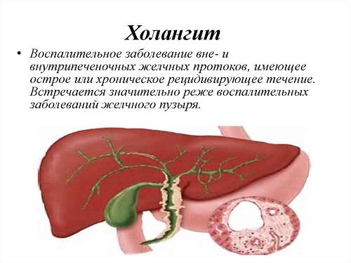 Холангит - причины, симптомы, осложнения, лечение, прогноз