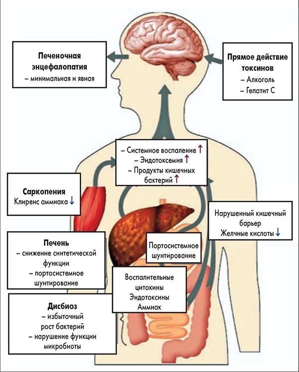 ПЕЧЕНОЧНАЯ ЭНЦЕФАЛОПАТИЯ в практике врача скорой медицинской помощи, печеночная энцефалопатия