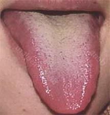 Появляется желтый налет на языке: ТОП 5 причин у взрослых