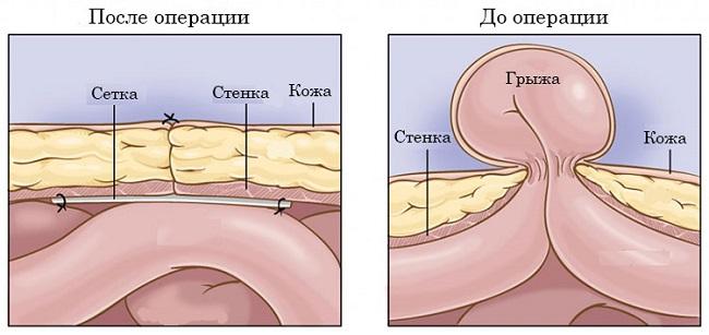 Осложнения после операции пупочной грыжи операция