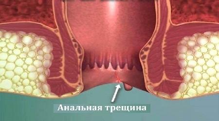 Острая анальнальной трещина лечение в домашних условиях