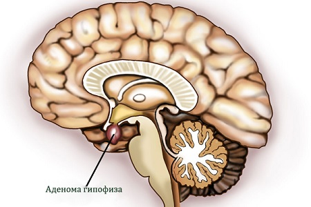 Микроаденома гипофиза: симптомы, лечение, чем опасна, прогноз, последствия, осложнения, аденома гипофиза