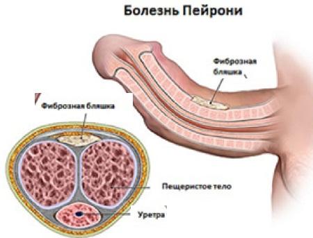 Лечение болезни пейрони без операции