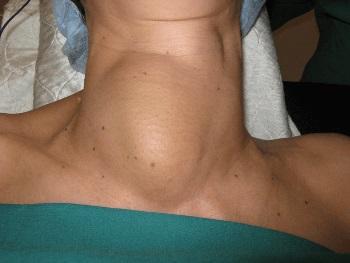 Кистозно узловой зоб щитовидной железы