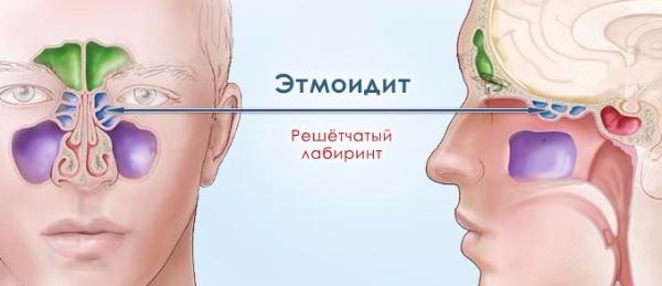 Правосторонний этмоидит