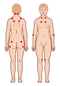 Фибромиалгия, что это? Симптомы и лечение в домашних условиях