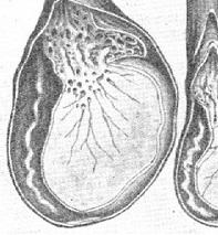 Воспаление яичка у мужчин - Сайт о мужском здоровье