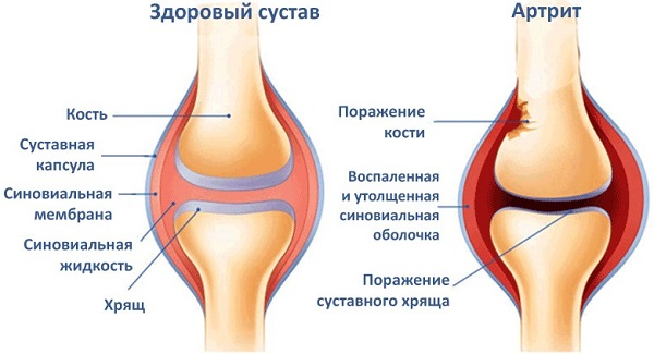 Реактивный артрит у ребенка причины
