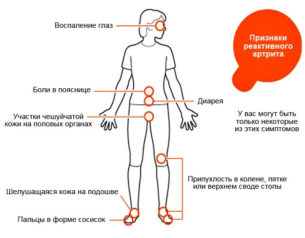 Реактивный артрит у ребенка коленного сустава прогноз thumbnail