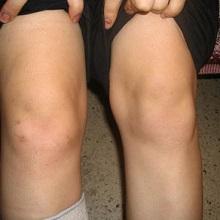 Реактивный артрит у ребенка 7 лет thumbnail
