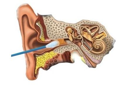 Как вынуть серную пробку из уха