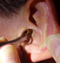 Серная пробка в ухе: как удалить в домашних условиях у взрослых