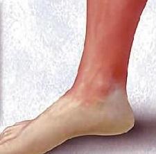 Рожистое воспаление ноги буллезная форма