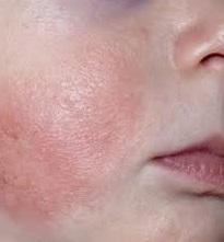 Детский дерматит фото и лечение